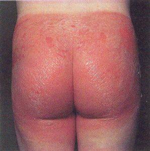 Раздражение между ягодицами у взрослых причины и лечение. Раздражение на ягодицах: типы, причины, лечение, профилактика