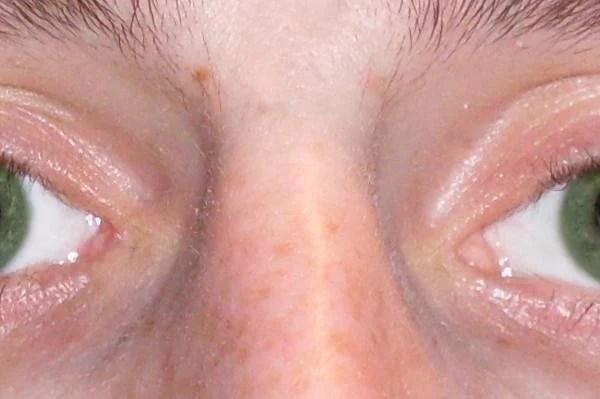anisocoria ¿Qué es la anisocoria? anisocoria1 opticas en cordoba Ópticas en Córdoba | Belgrano 53 | Óptica Galileo anisocoria1