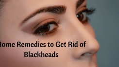 5 Home Remedies to Get Rid of Blackheads on Your Nose