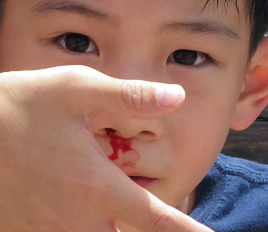 nose bleeding treatment