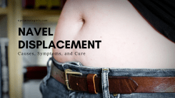 Navel displacement Guide: Causes, Symptoms, and Cure