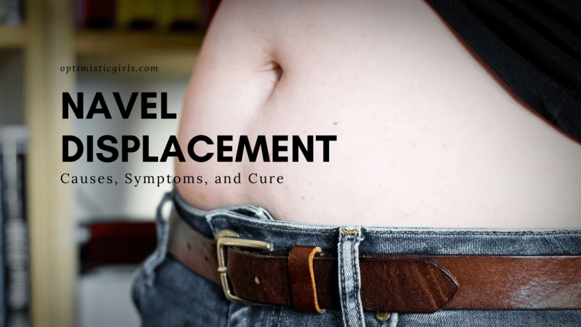 navel displacement
