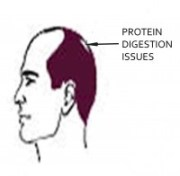 HAIR LOSS PATTERNS - PROTEIN DIGESTION ISSUES