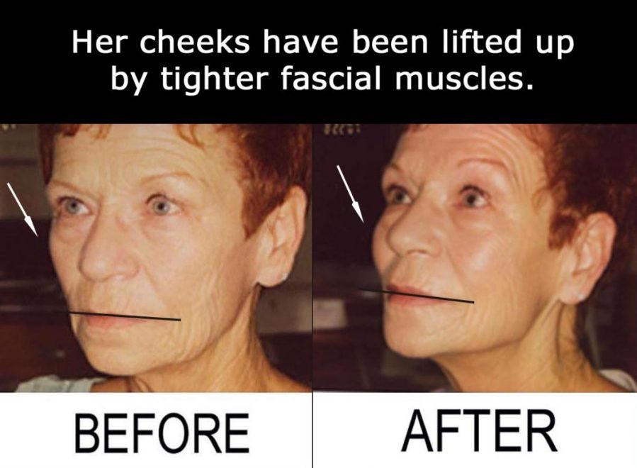 Protein Deficiency Improving