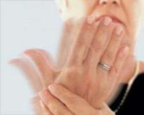 Essential hand Tremor