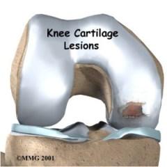 joint - osteoarthritis earlier stage