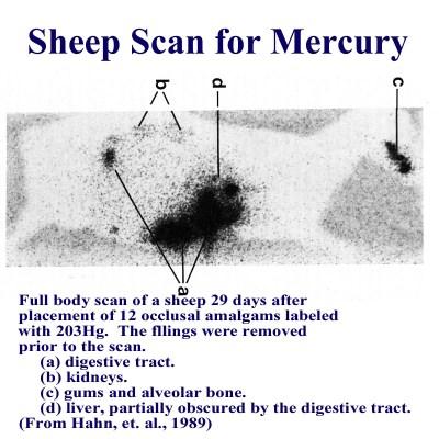 Amalgams and Mercury: Sheep Scan for Mercury