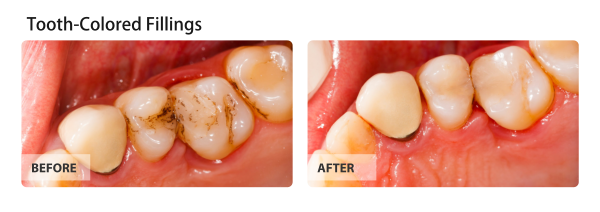 Tooth-Colored Fillings