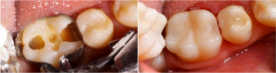 Composite Fillings - Tooth-Colored Fillings