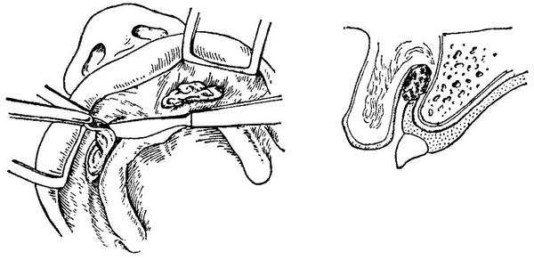 Фиброма на голове: симптомы и лечение