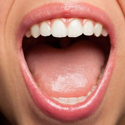 Picture of healthy mouth