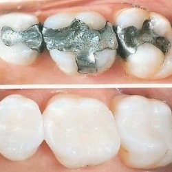 teeth filling cost
