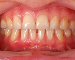 Sensitive Teeth red gums