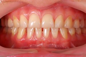 Sensitive Teethred gums