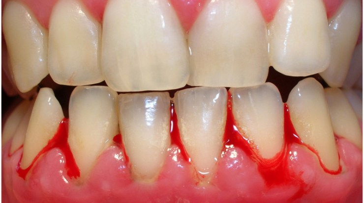 early symptoms of gingivitis