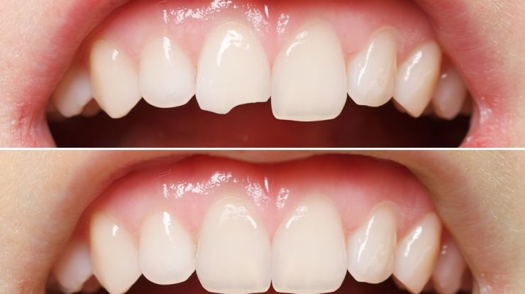 Fix Broken Tooth At Home