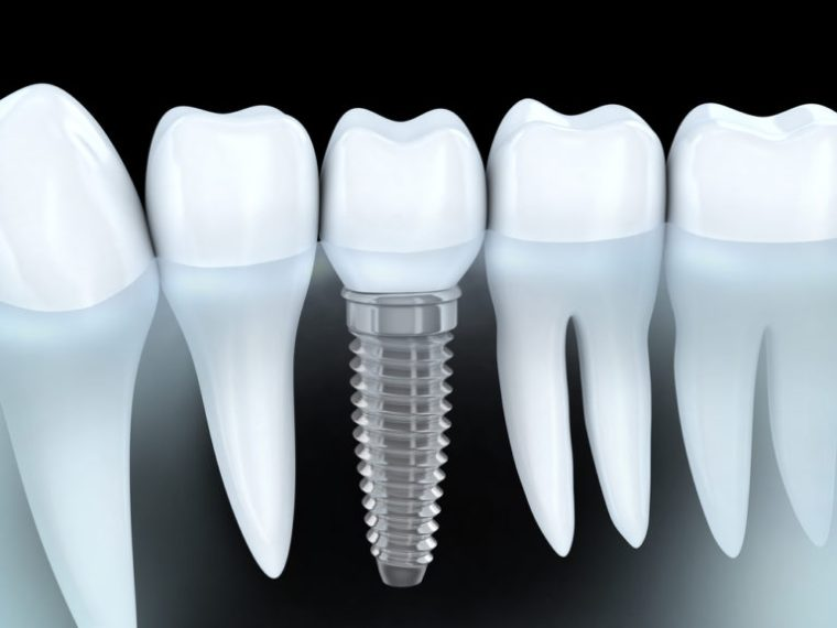 Dental Implant fix a dead tooth