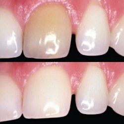 dead tooth whitening