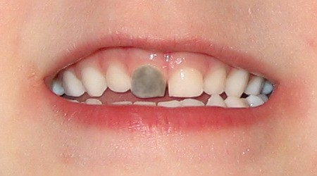 Grey dead tooth in toddler