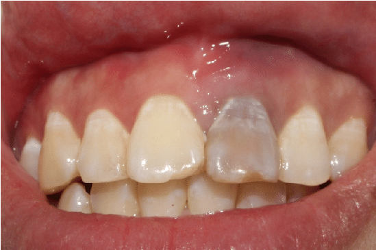 tooth discoloration after trauma