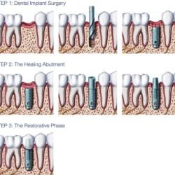 Dental implant advantages