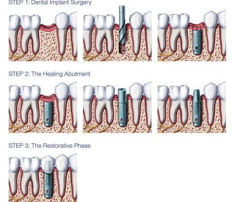 Dental implant advantages