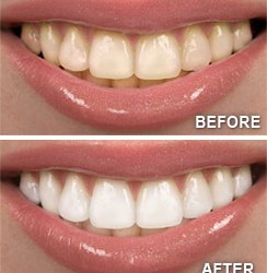 how to fix discolored teeth