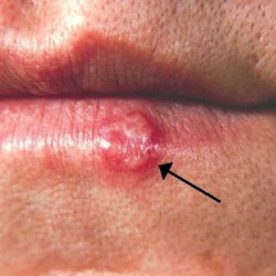 how long do cold sores last