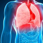 Tuberculosis-breakthrough-Experts-have-found-a-drug-which-can-defy-antibiotic-resistant-TB-979059