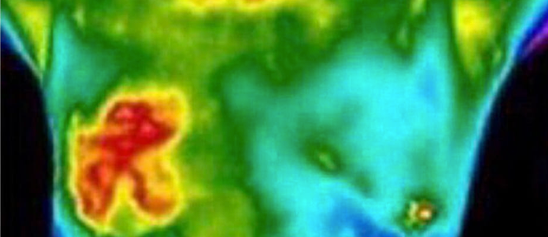 Thermography: The Future Of Breast Cancer Detection?