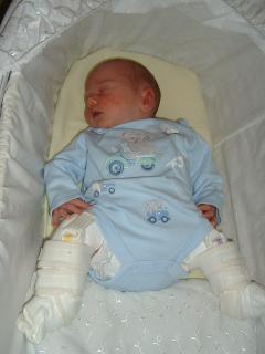 Pavlik and leg casts