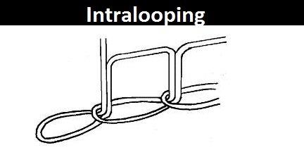 Intralooping
