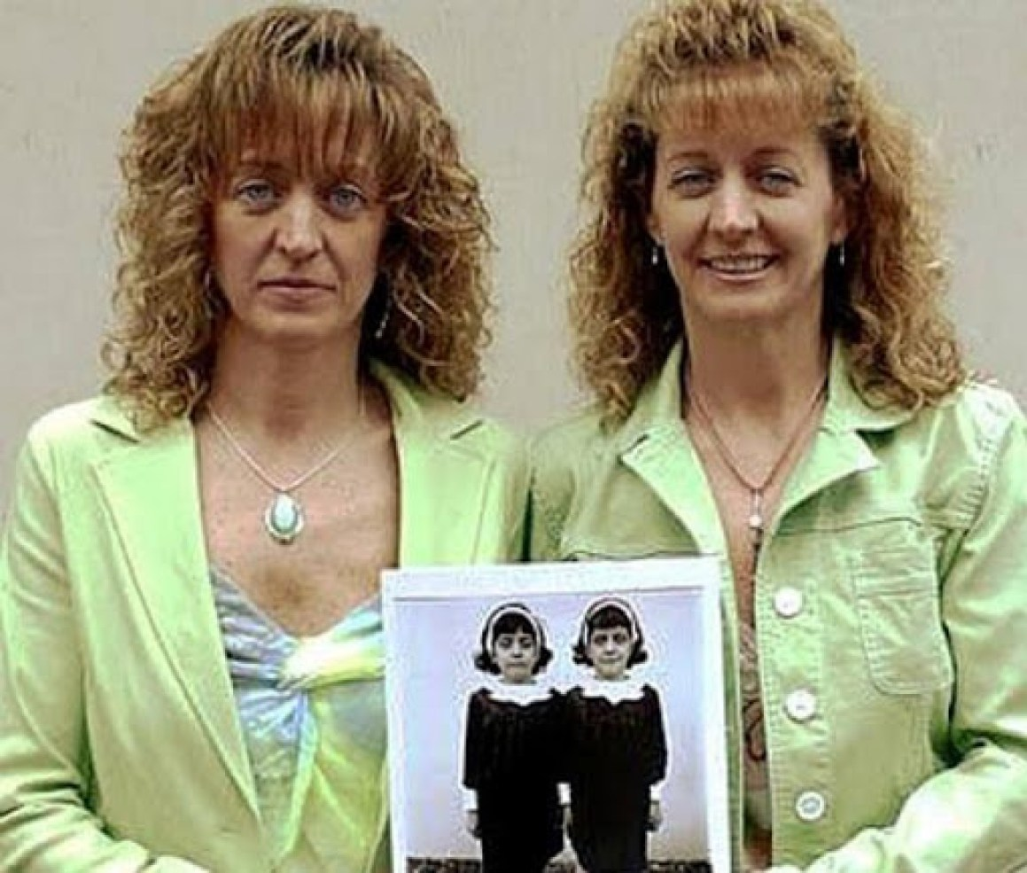 Pollock twins: after their death in an accident, they were again born to  their mother | ORDO NEWS