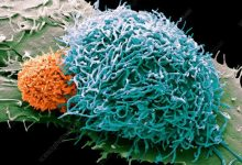 Photo of Scientists explain how cancer cells evade the immune response after radiation exposure