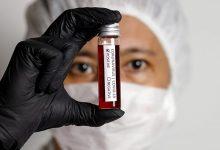 WHO declared the animal origin of coronavirus
