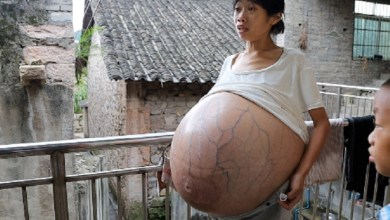 Photo of Chinese woman has a very large belly due to an unknown disease