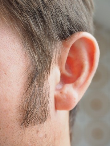 PRP stimulates hair growth at Oregon Regenerative Medicine in Portland