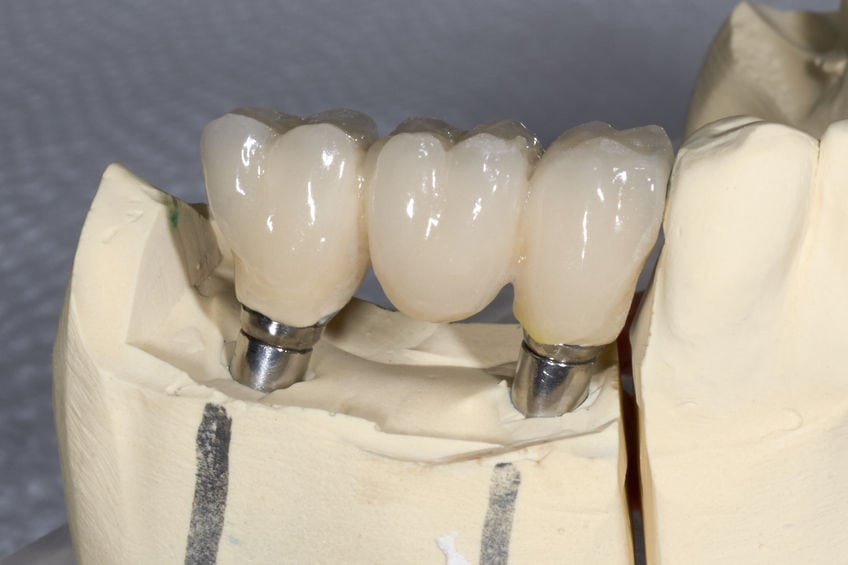 6 Reasons You May Need a Dental Crown