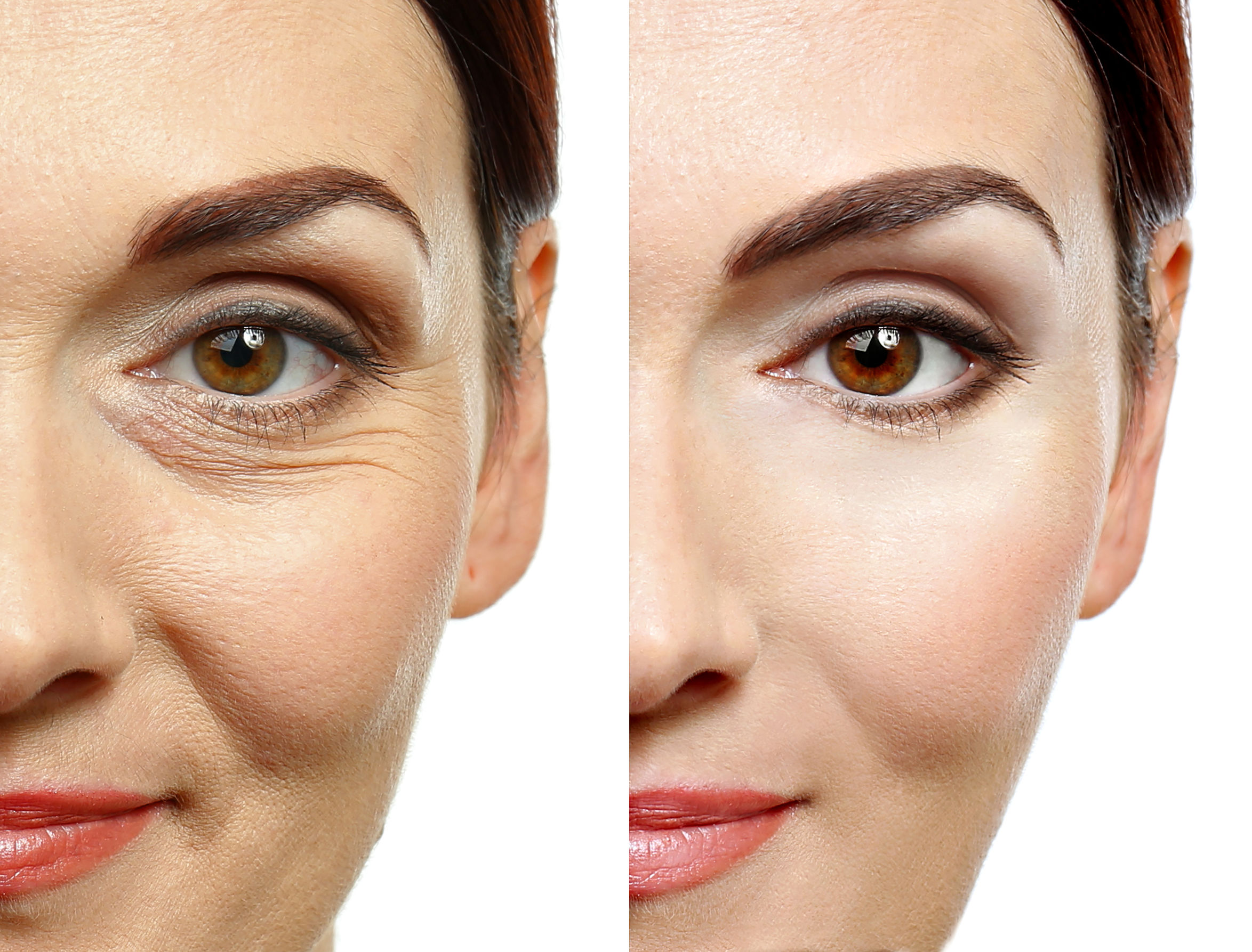 Anti Aging - Cosmetic Spa Services
