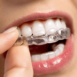 Clear Braces Oregon City, OR | Pioneer Dental Group