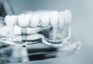 Dental Implants Recovery Time