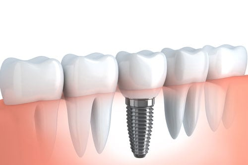 Dental Implants Oregon City, OR | Pioneer Dental Group