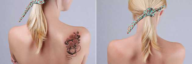 Before after laser tattoo removal portland oregon