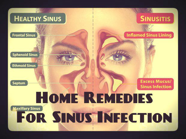 Natural Home Remedies For Allergies And Sinus