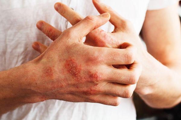 Miehellä ihottumaa käsissä