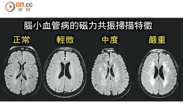 腦小血管病 增認知障礙風險 - 東方日報