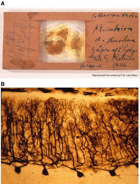 Figura 2. Preparación de cerebelo humano. Golgi. Fuente: Grant G. Brain Research Reviews. 2007 Oct;55(2):490-8.