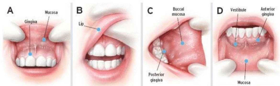 mouth-cancer detection
