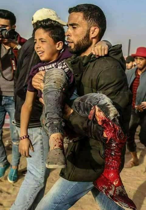 جرائم الاحتلال الصهيوني تستهدف الطفل عبد الرحمن نوفل – عروبة الاخباري |  Oroba News