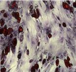 Stem Cells for OBuzz